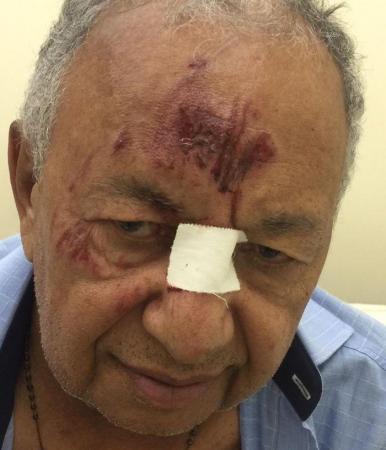 Dr. Pessoa é atropelado na zona rural de Teresina. (Divulgação)
